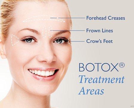 Botox Specials Charlotte