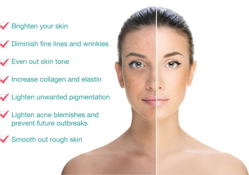 Chemical Peel Treatment Benefits Charlotte