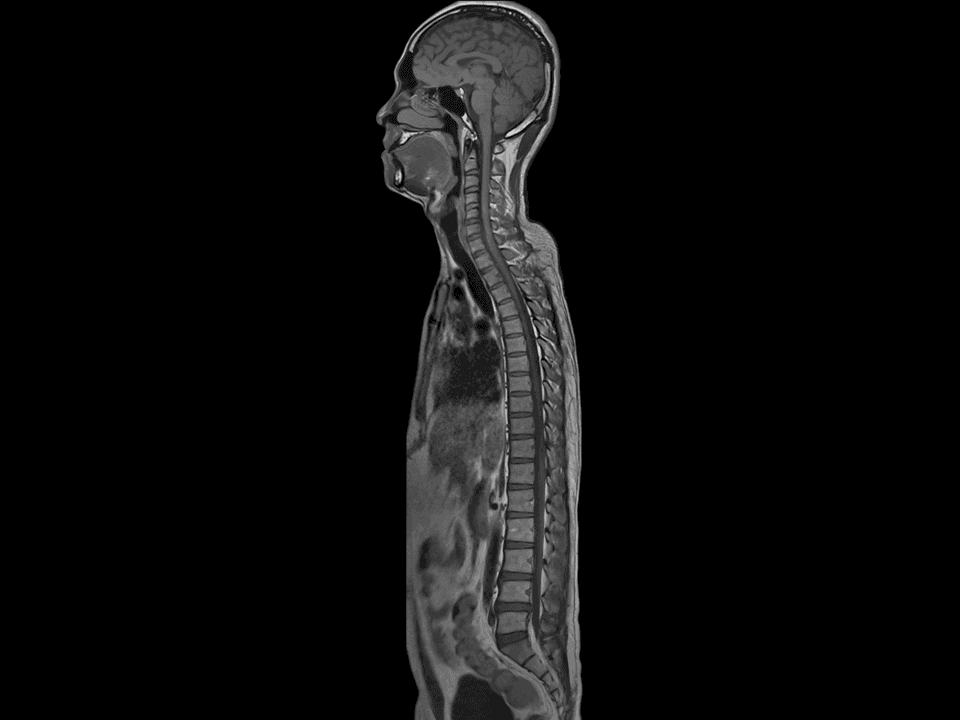 Total body spine