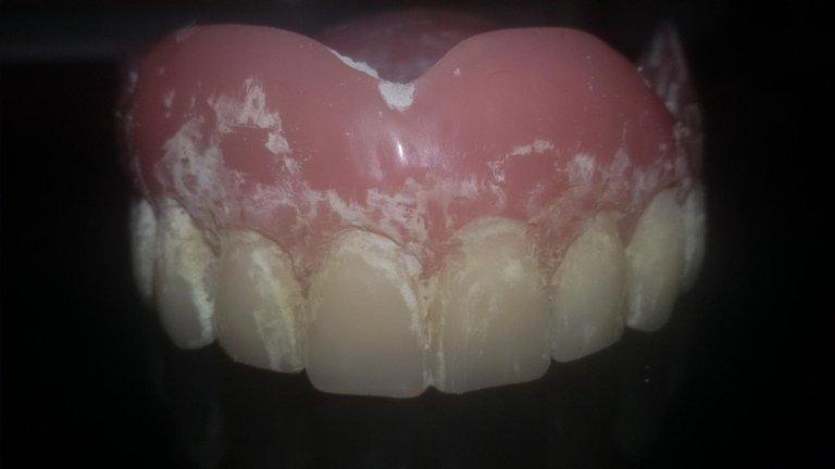 pulitura dentiere finocchi