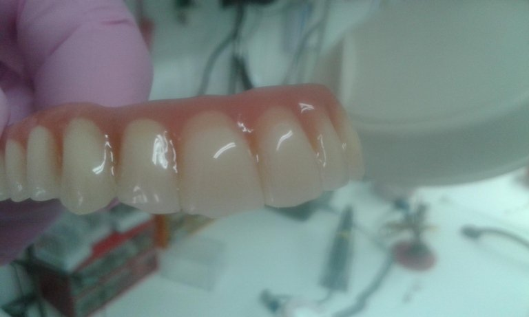 all on four roma dentista