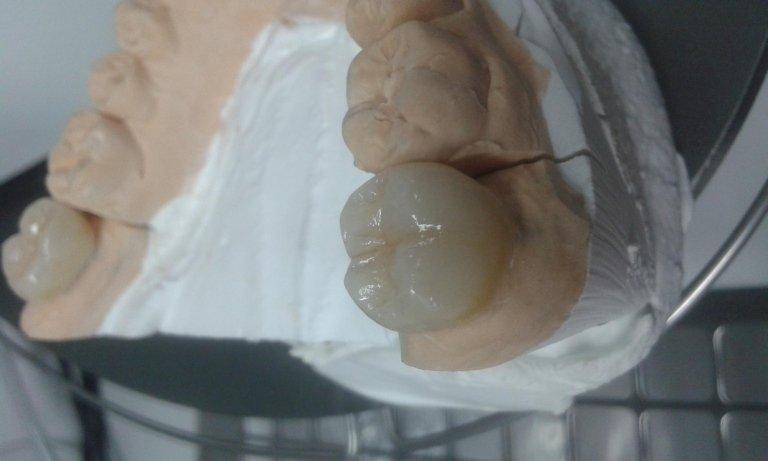 protesi roma
