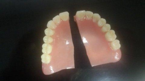 riparazione dentiere finocchi