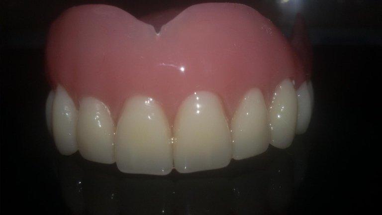 pulitura dentiere roma