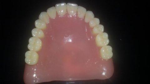 riparazione dentiere roma