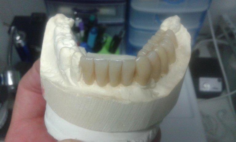 provvisori dentali