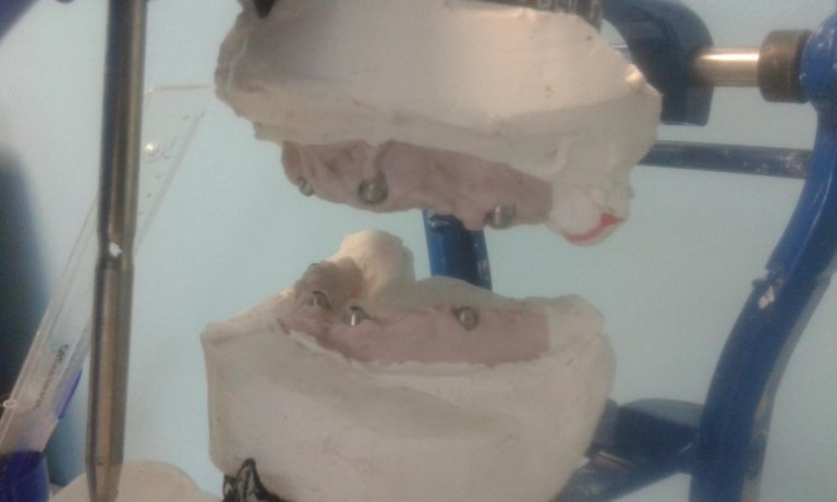 implantoprotesi roma