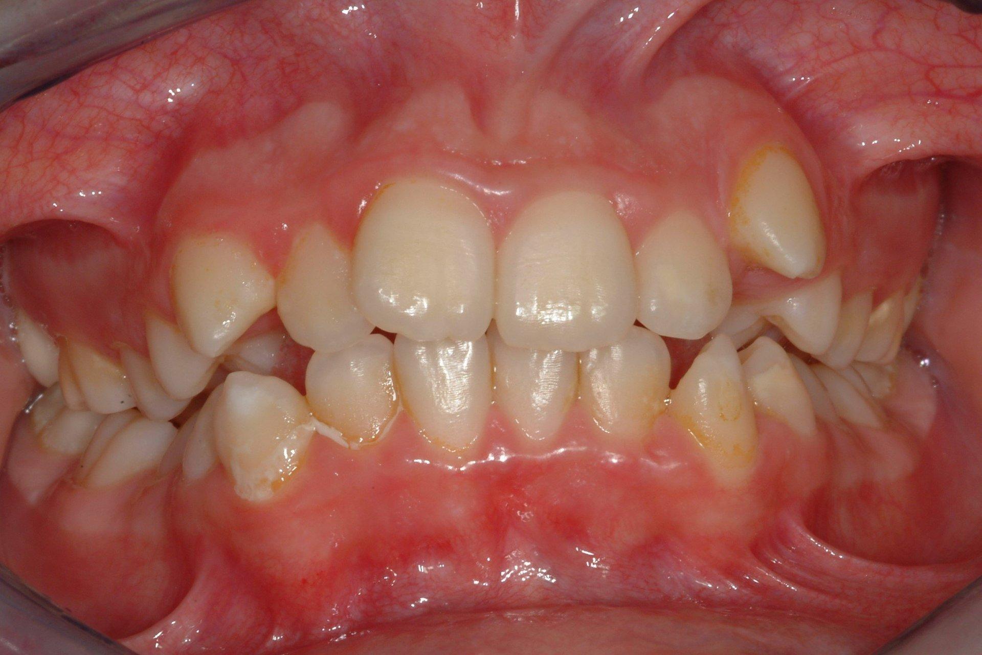 primo piano di denti paziente 5