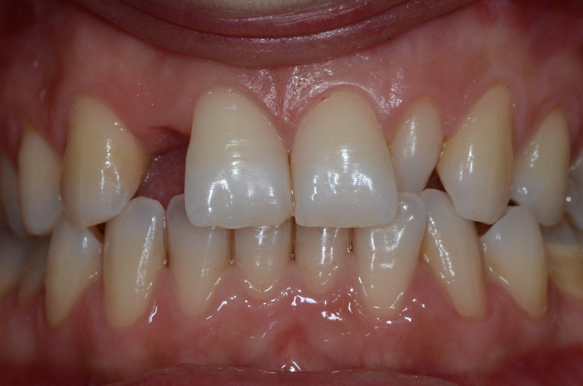 primo piano di denti paziente 12