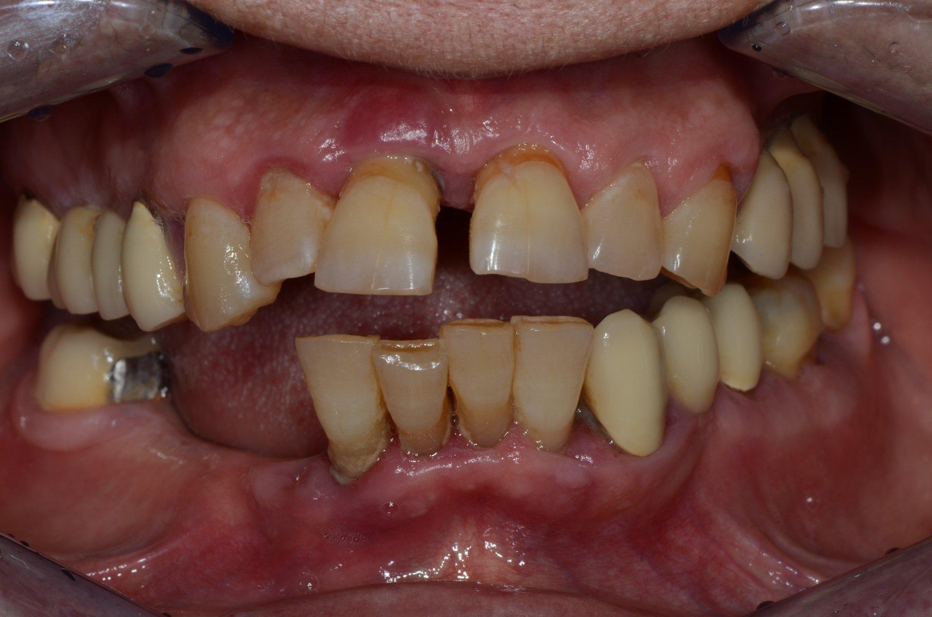 primo piano di denti paziente 15