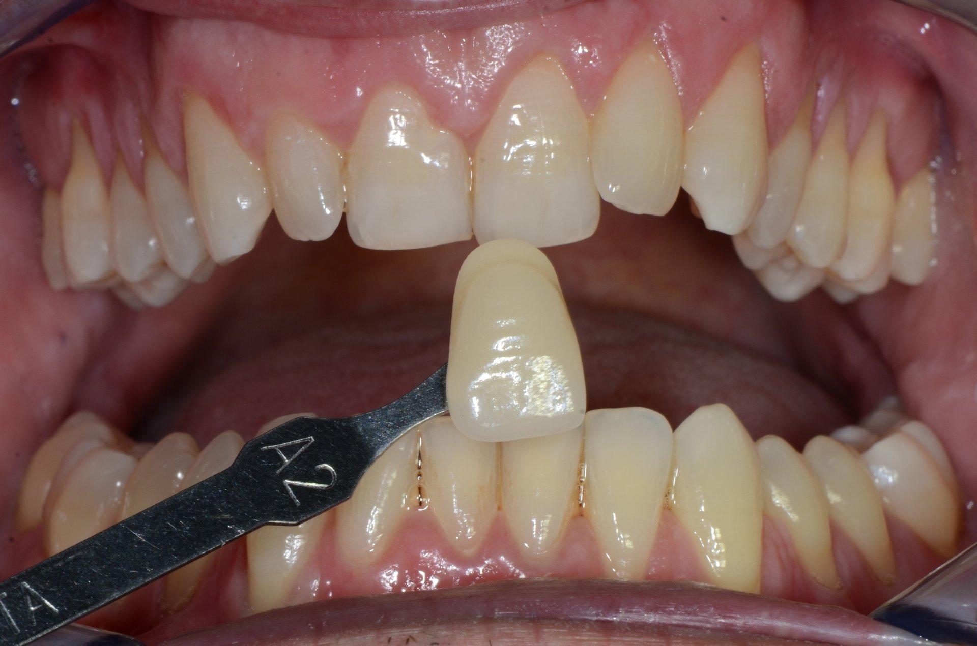 primo piano di denti paziente 3
