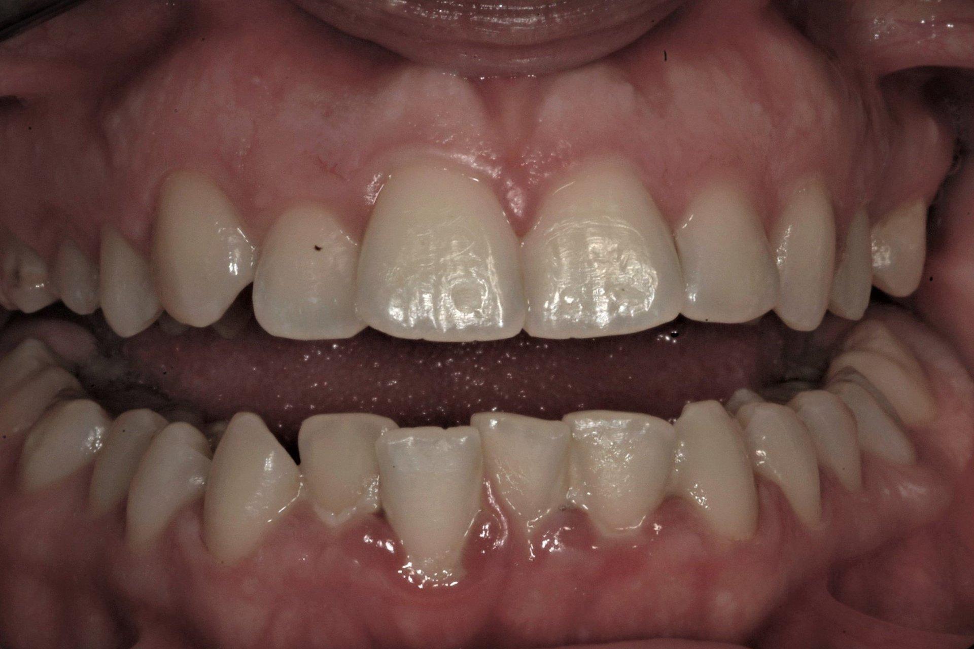 primo piano di denti paziente 9
