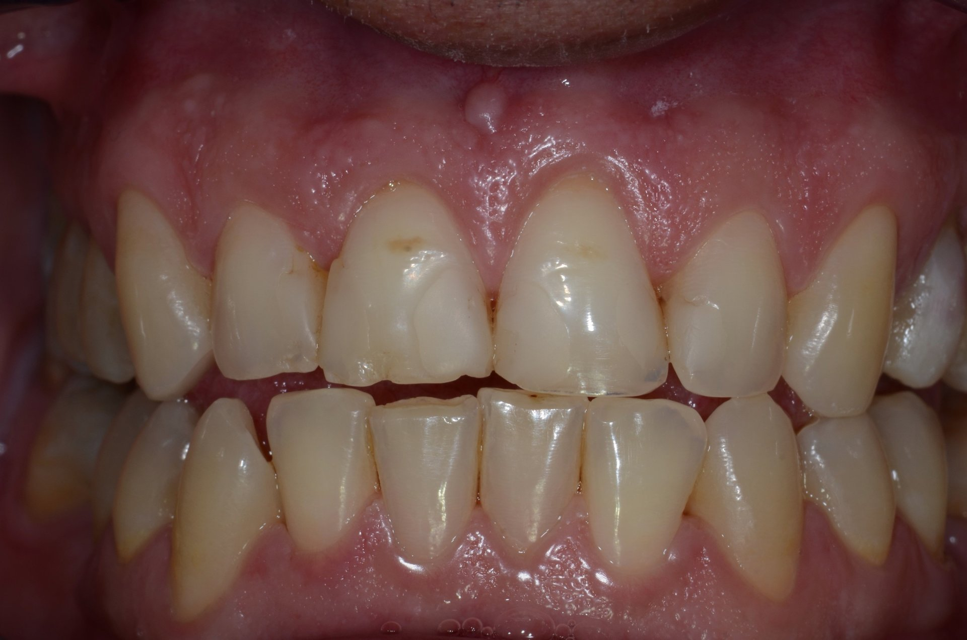 primo piano di denti paziente 22
