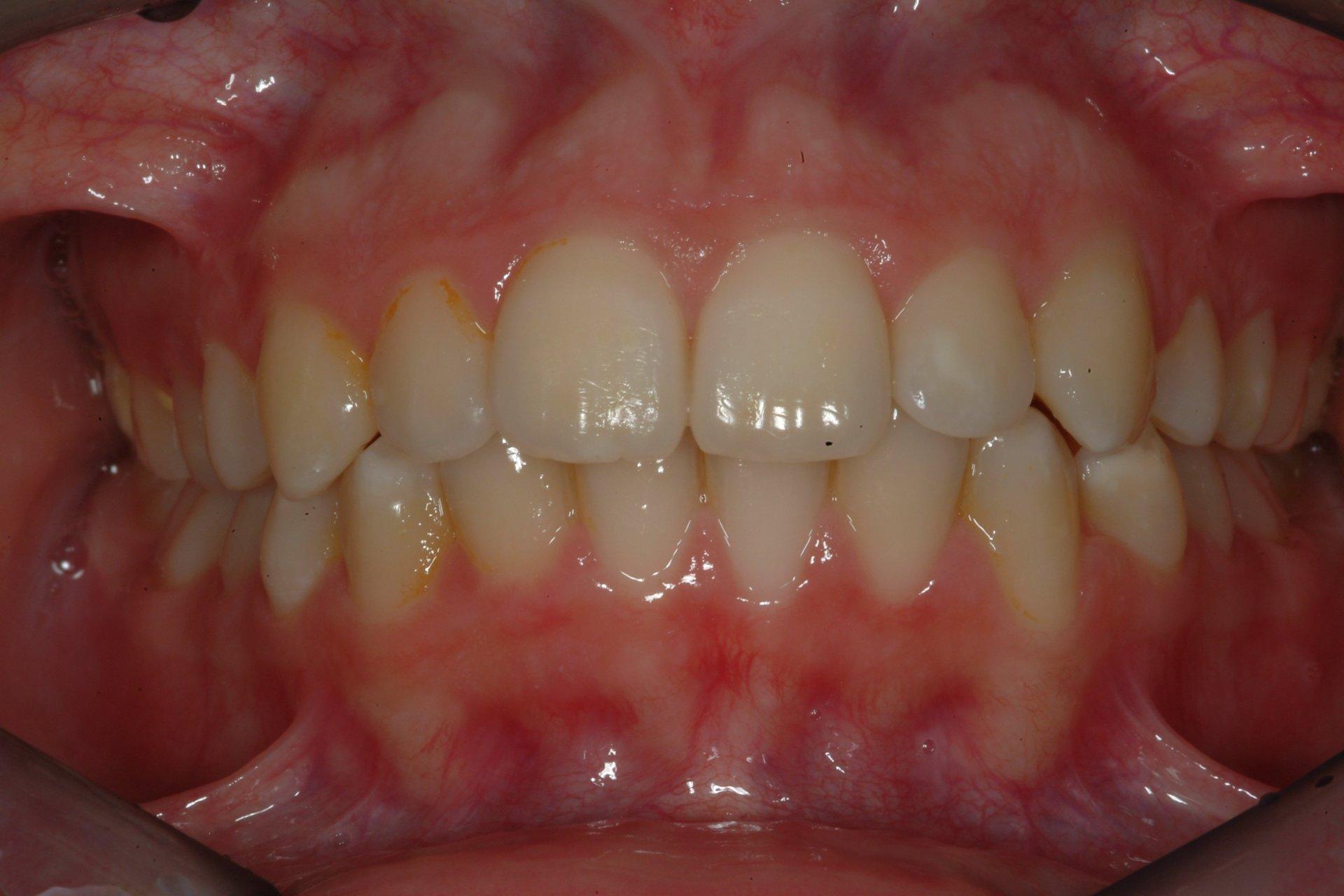 primo piano di denti paziente 6