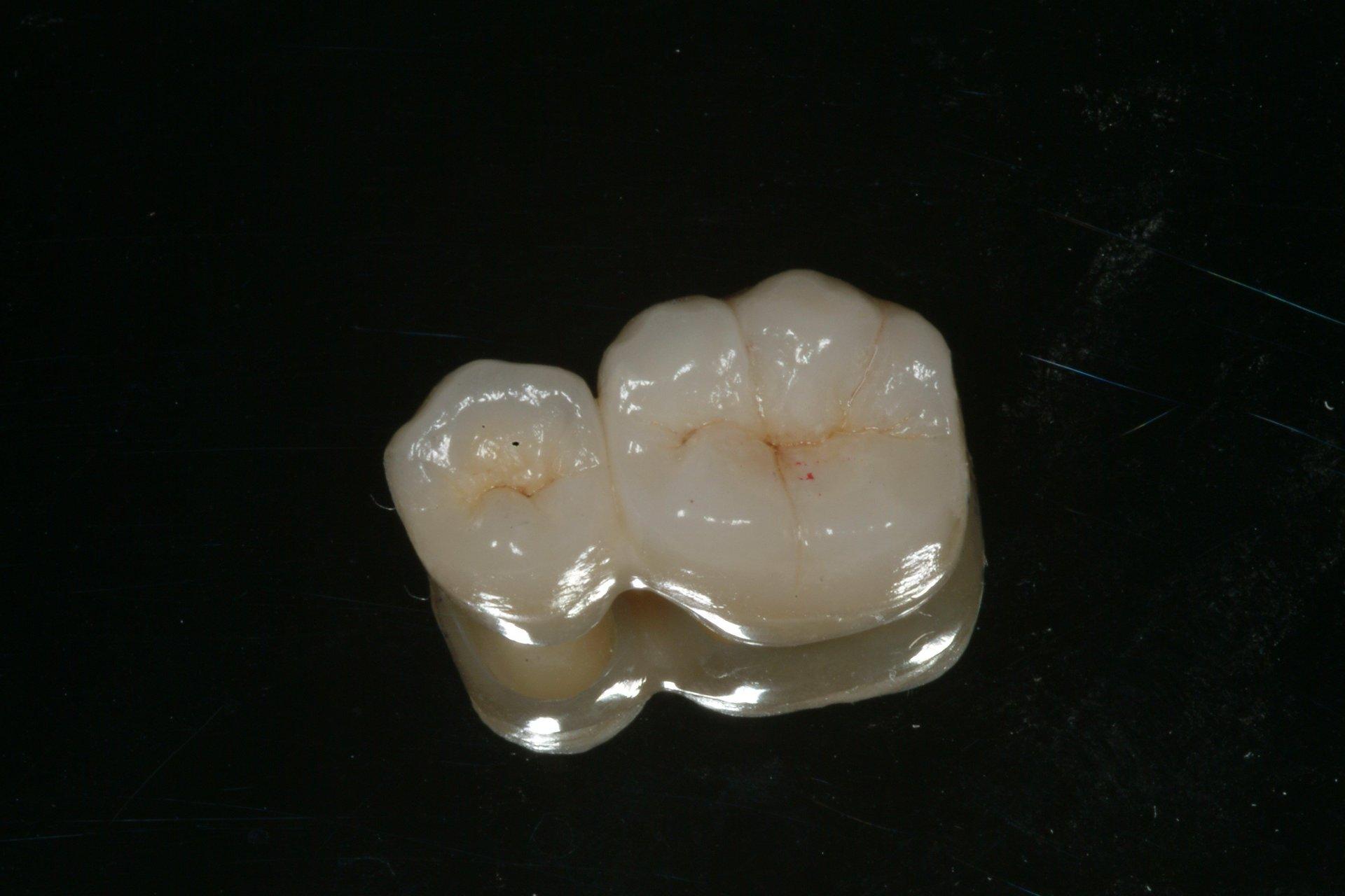denti con tartaro