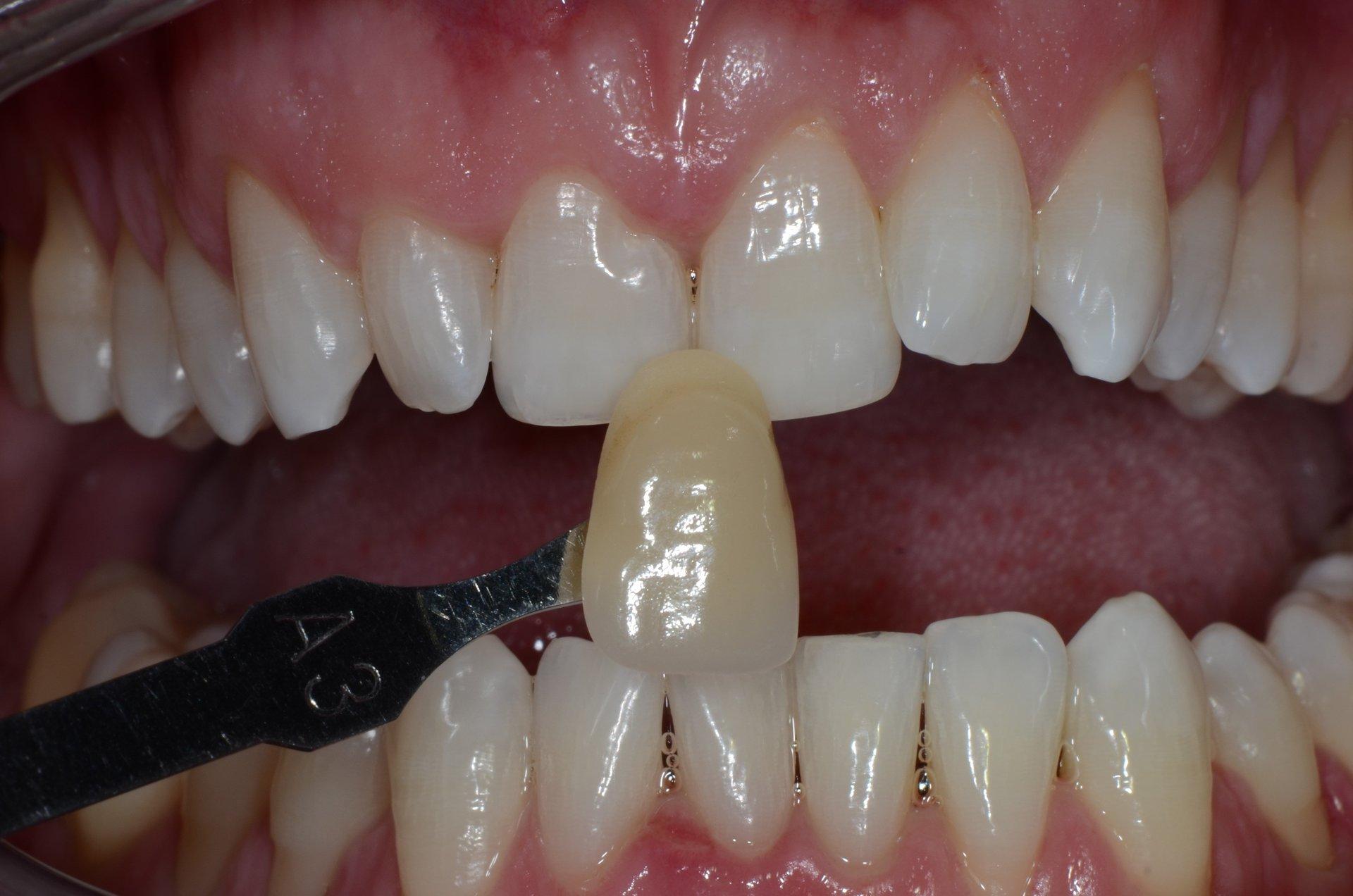 primo piano di denti paziente 4