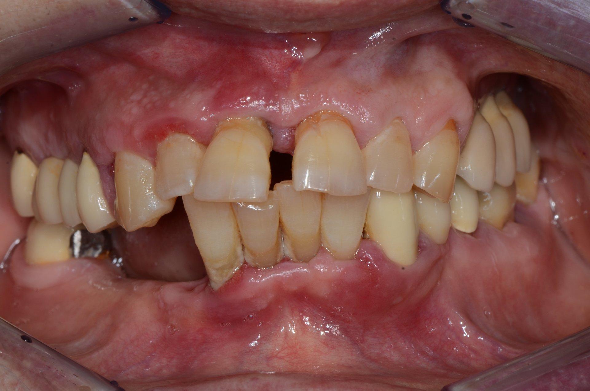 primo piano di denti paziente 14
