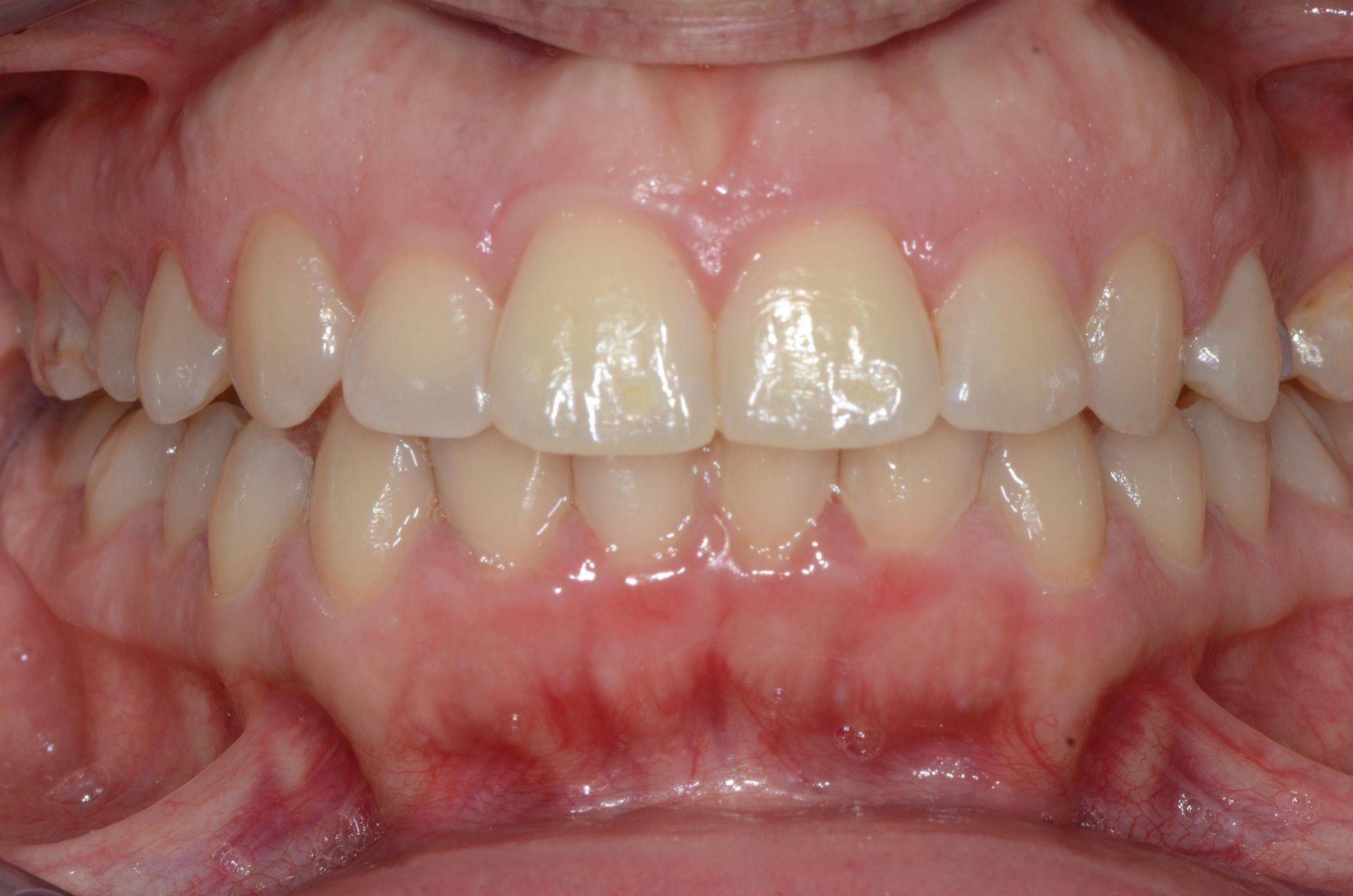 primo piano di denti paziente 7