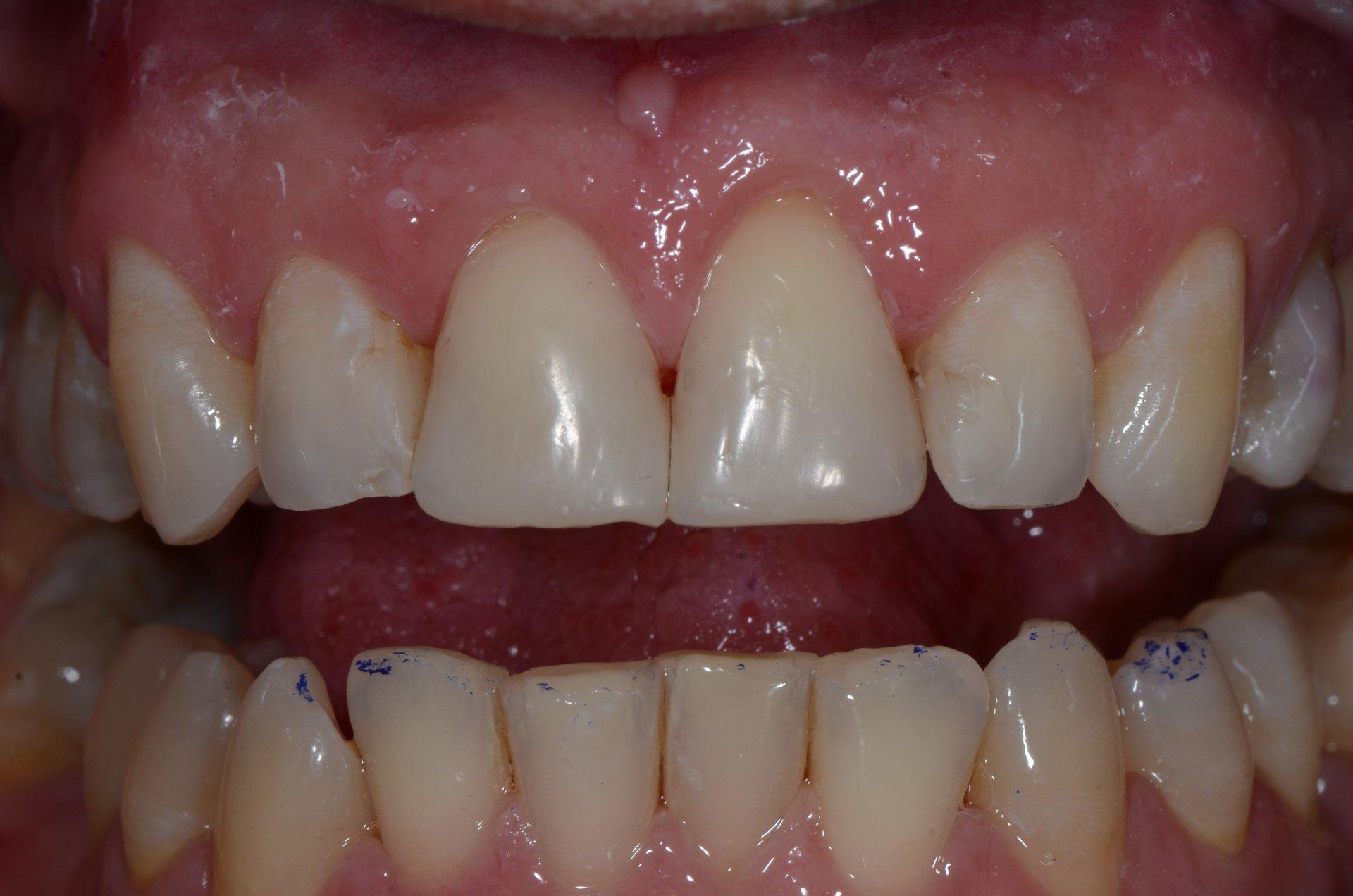 primo piano di denti paziente 21