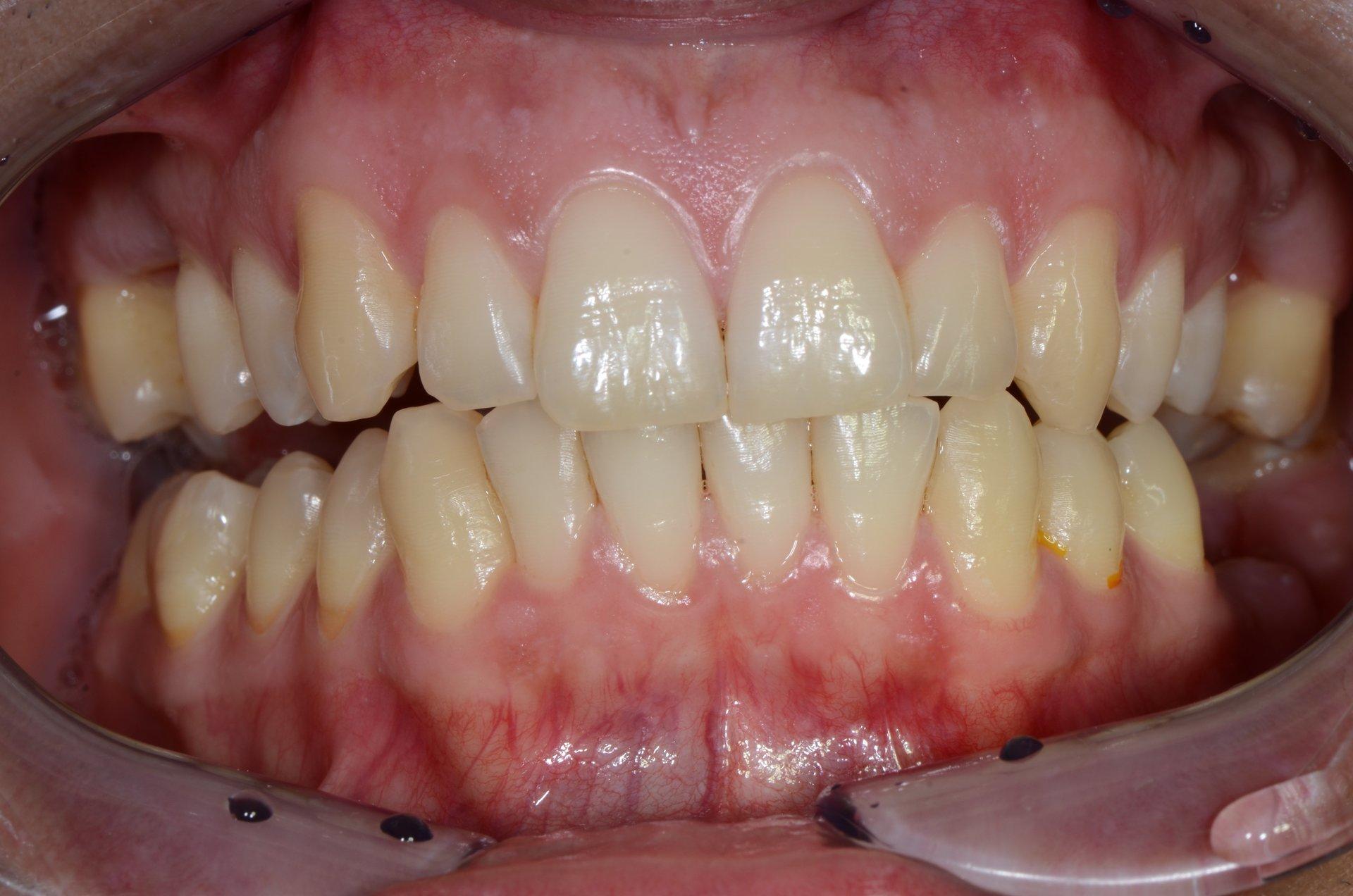 primo piano di denti paziente 1