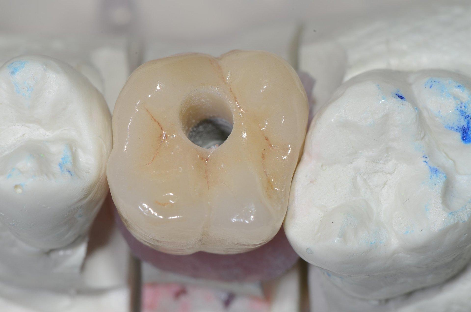 dente con foro chirurgico