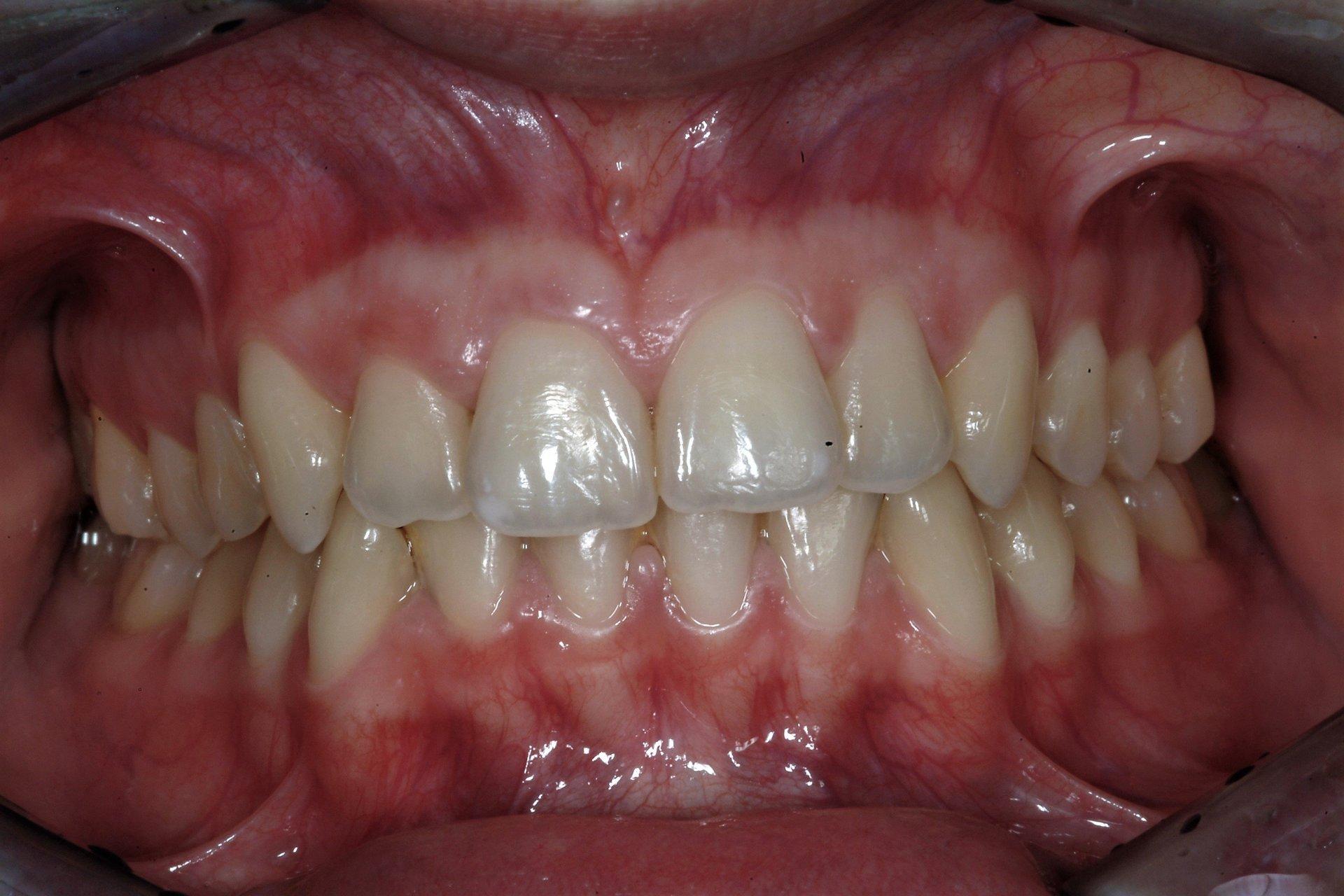 primo piano di denti paziente 8