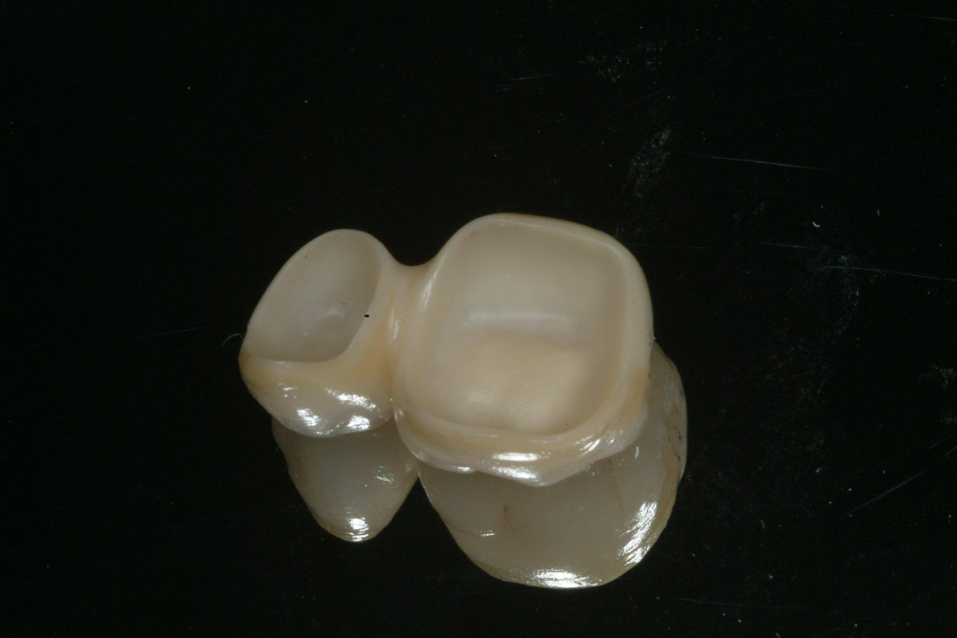 denti rovinati