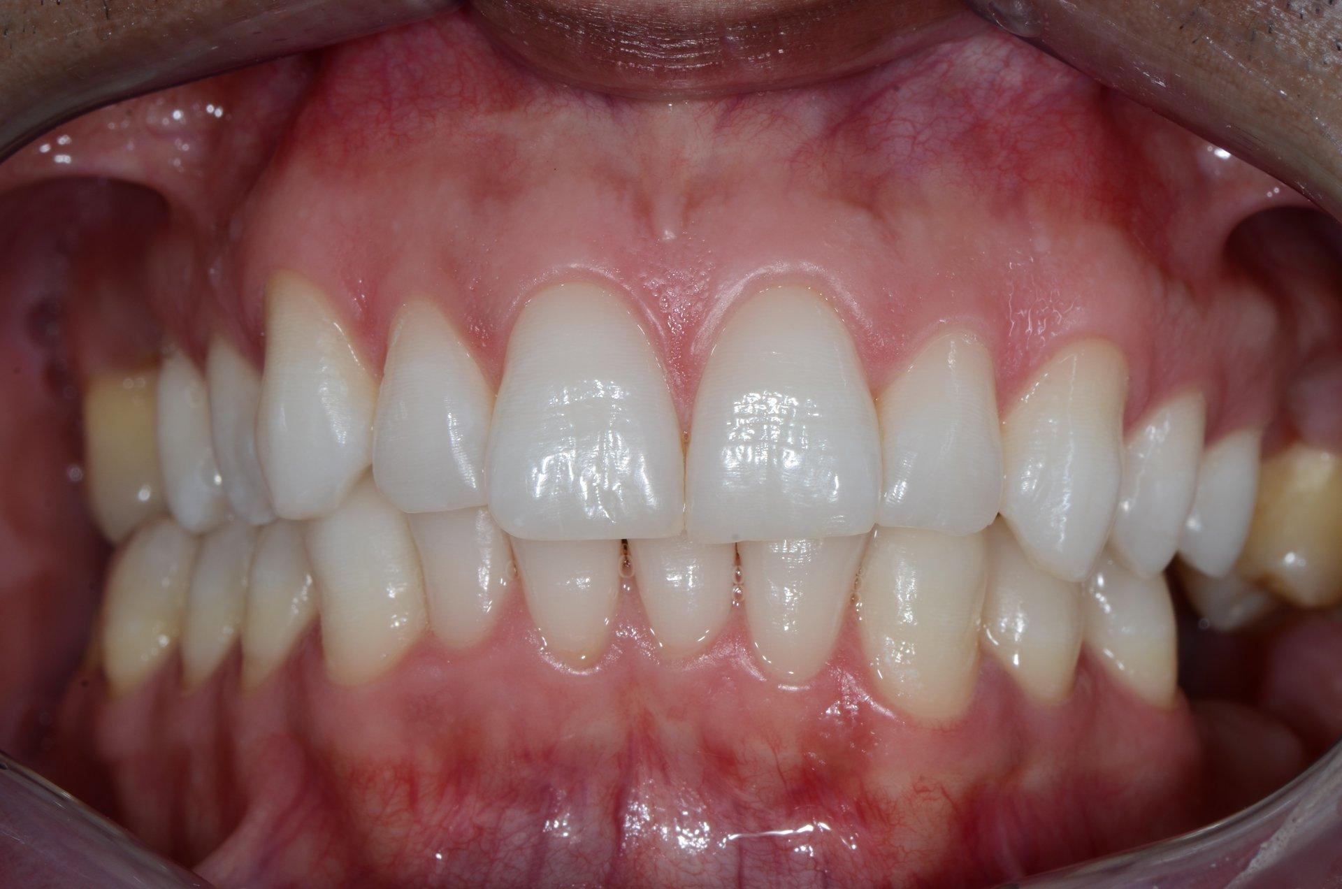 primo piano di denti paziente 2
