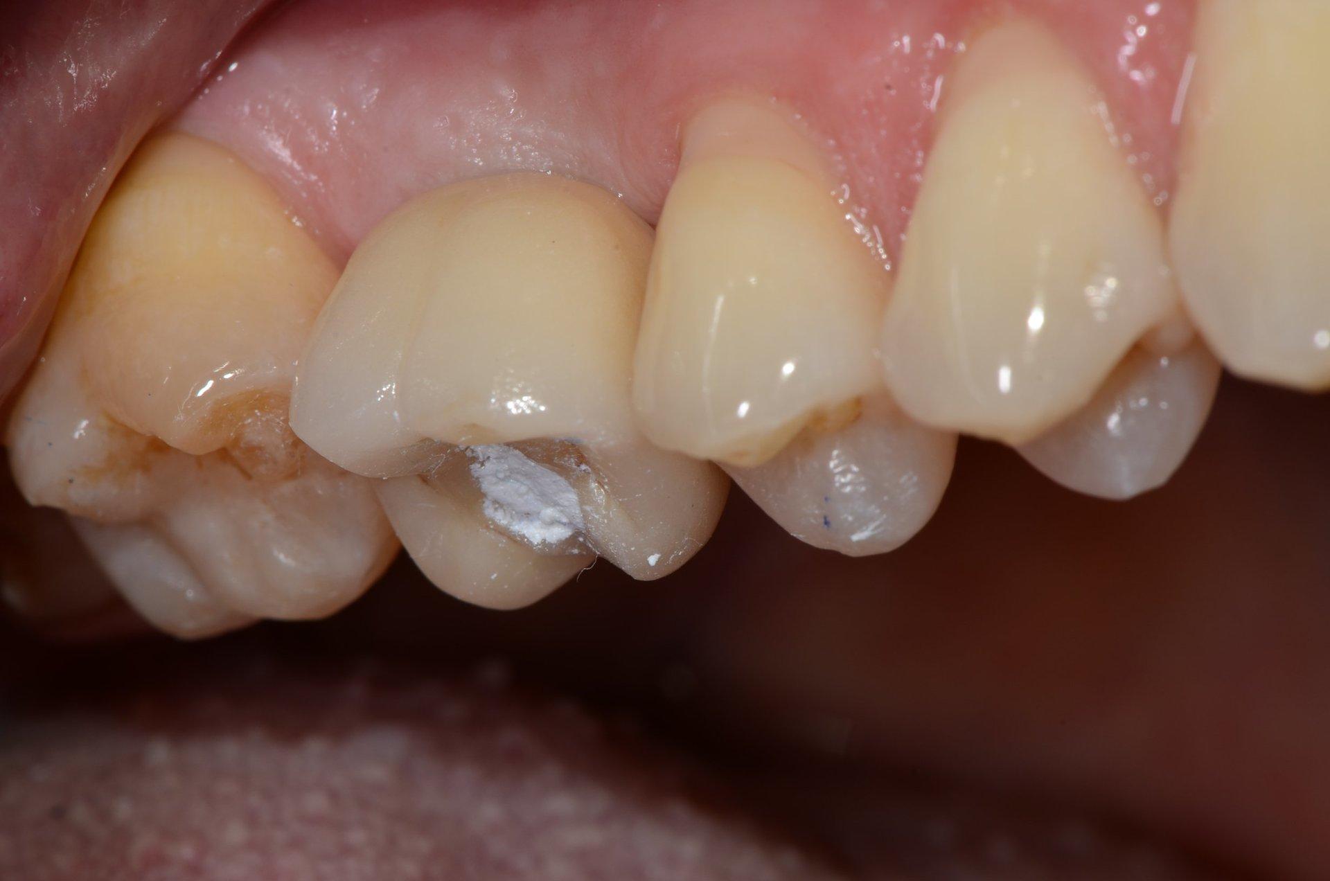 primo piano di denti paziente 18