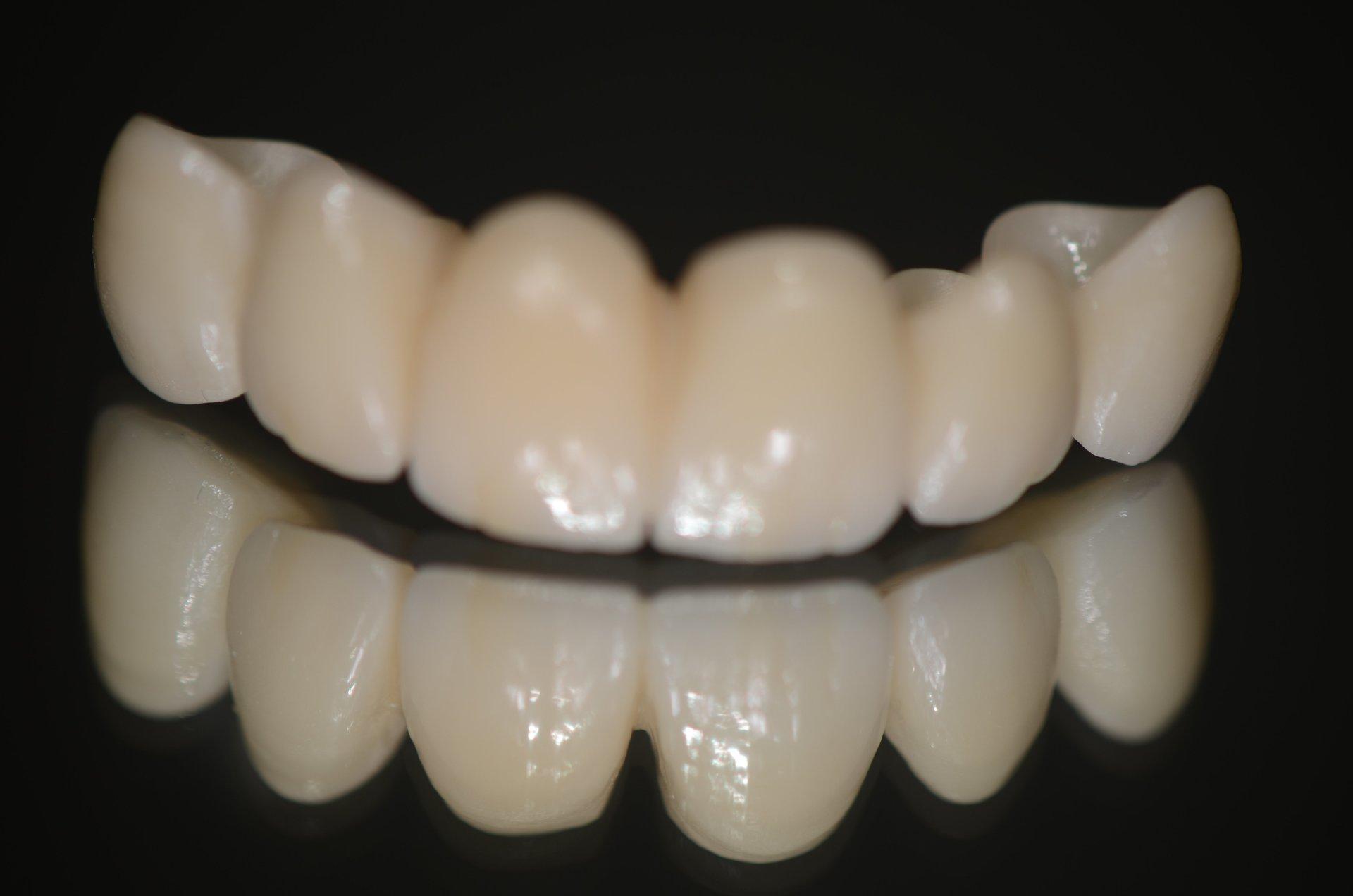 riproduzione di denti