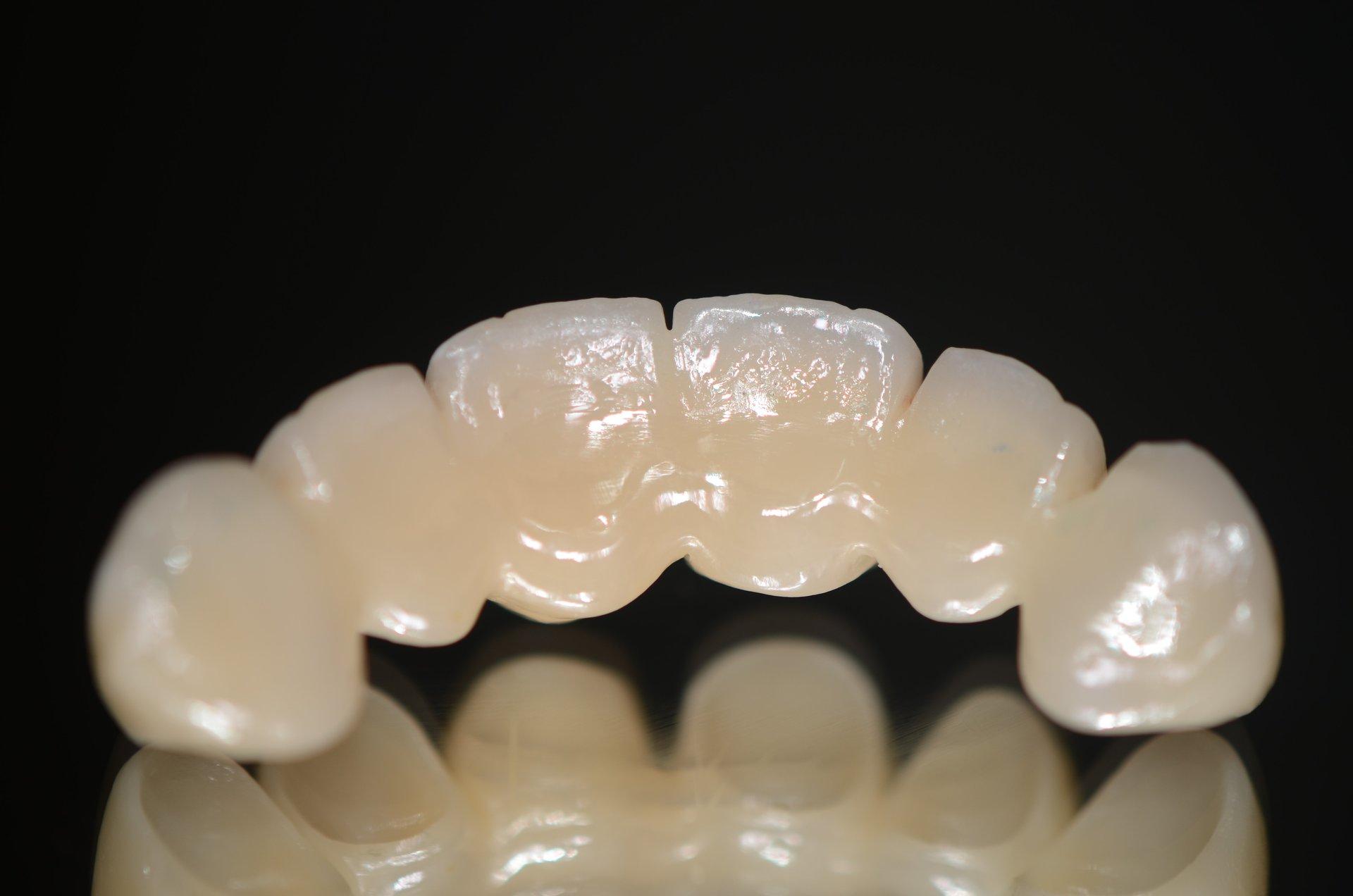 riproduzione di denti in ceramica
