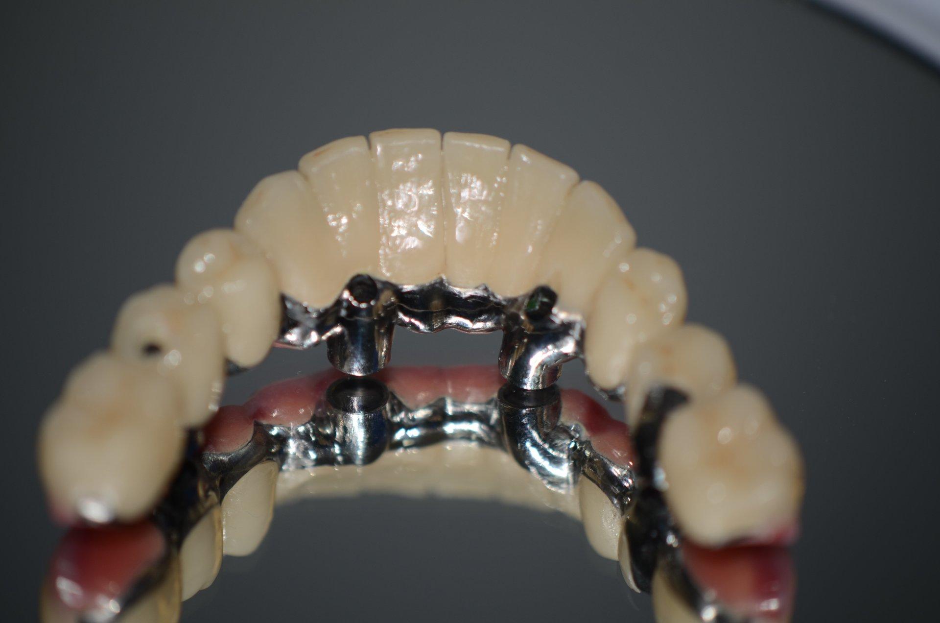 applicazione di apparecchio su denti di paziente