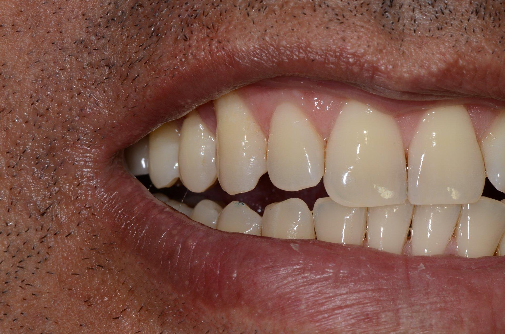 primo piano di denti paziente 16