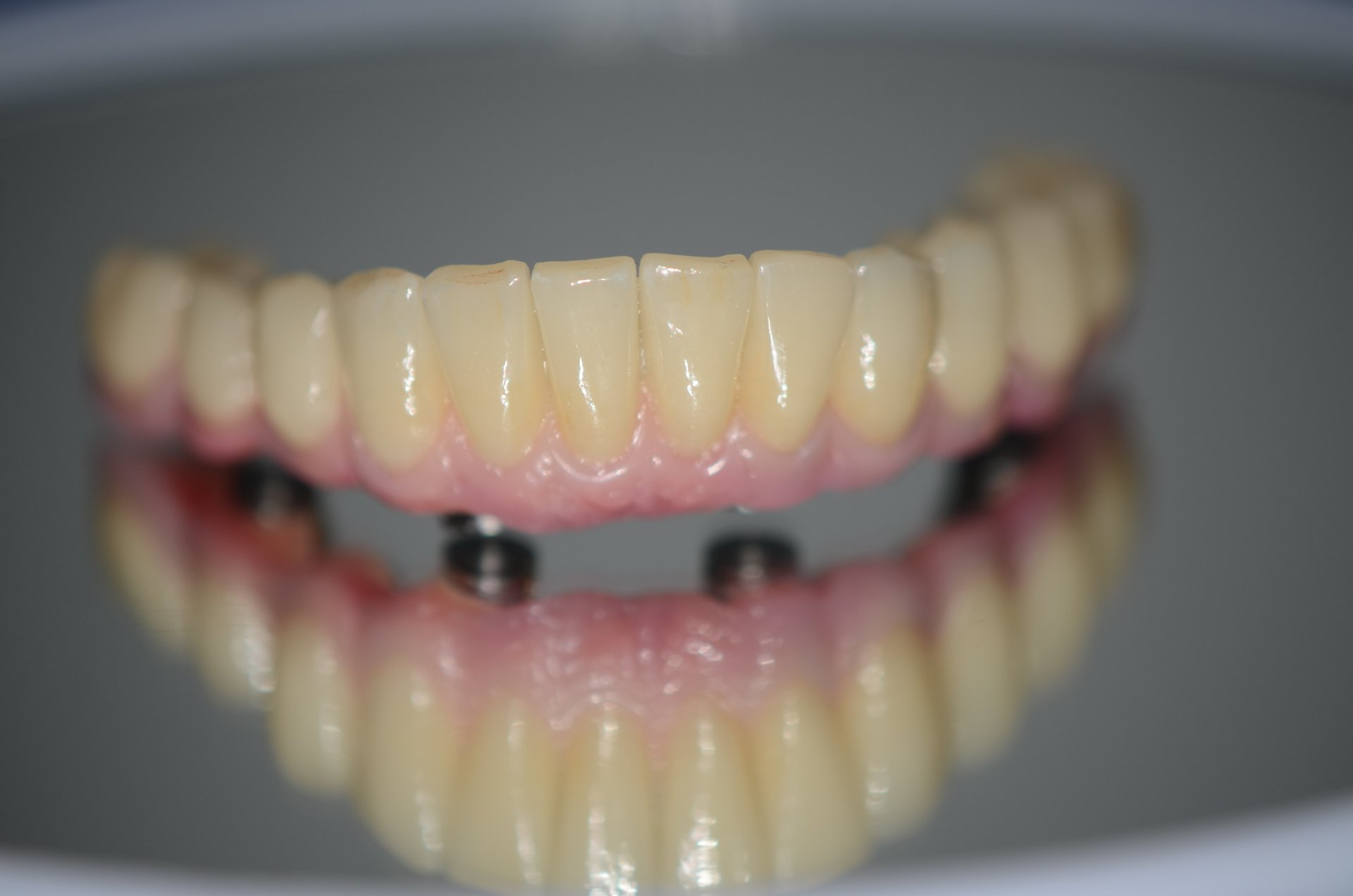 denti a incastro