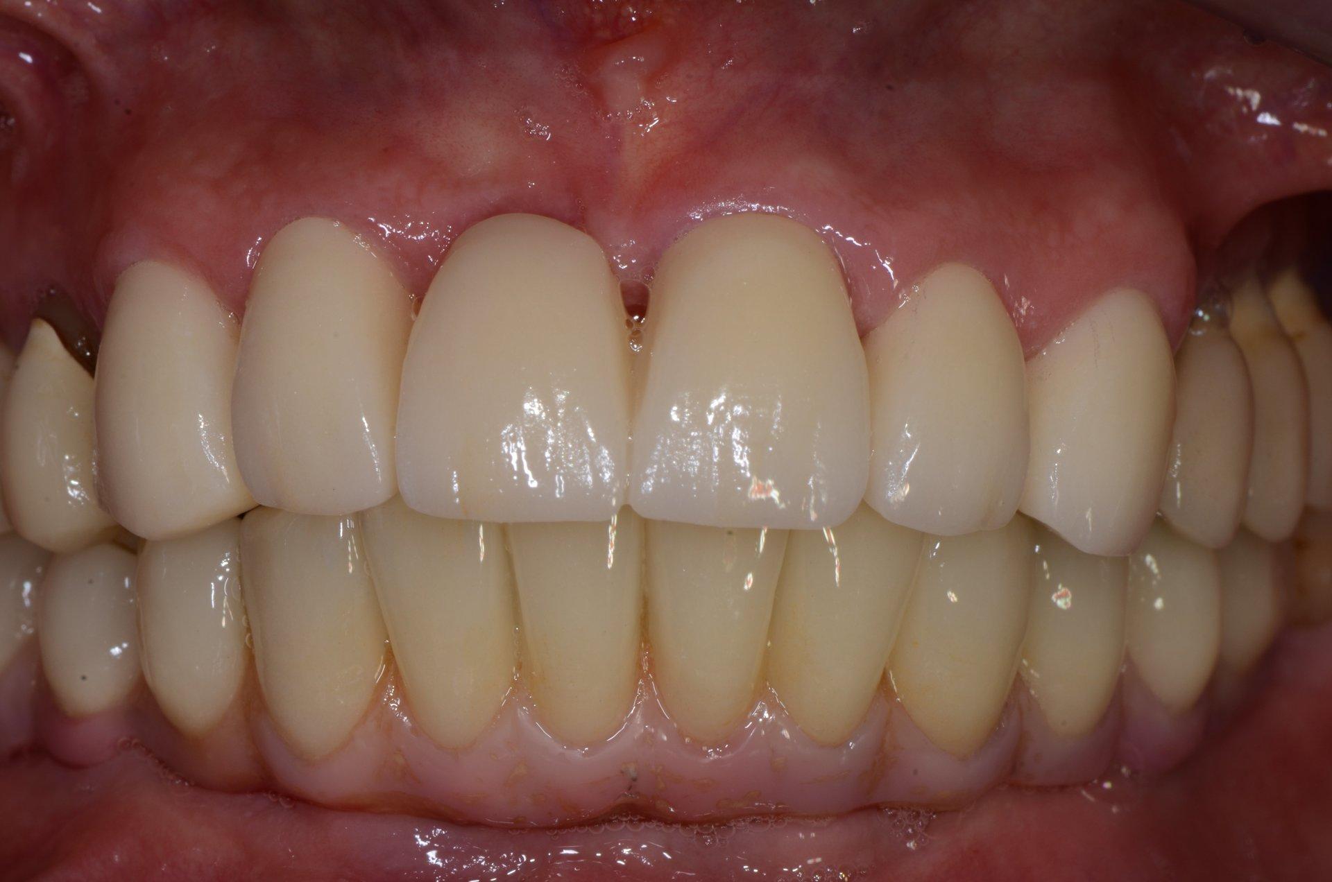 primo piano di denti paziente 10