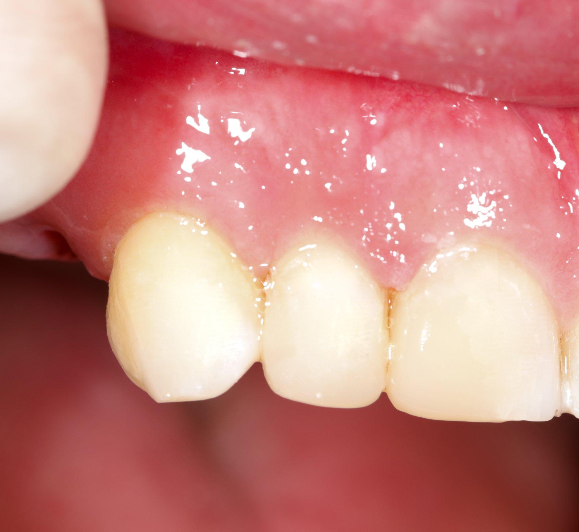 Dental Fillings Midtown Manhattan | New York Total Dental