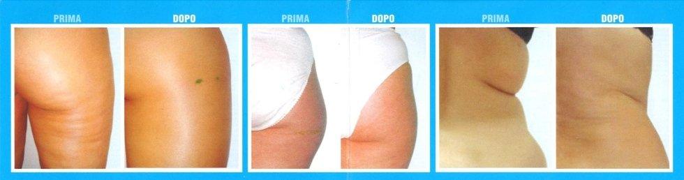 risultati trattamento contro la cellulite