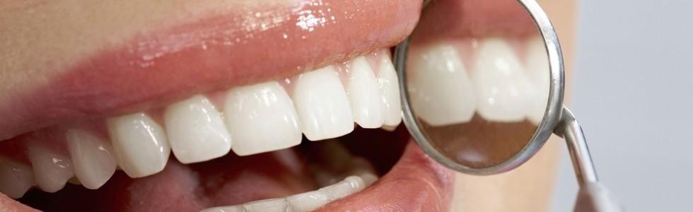 Odontoiatria estetica Monza Brianza