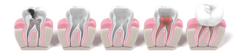 teeth with damage