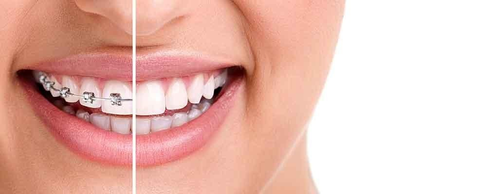 apparecchi-dentali