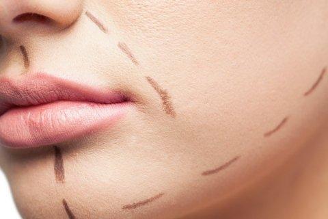 Chirurgia estetica del viso