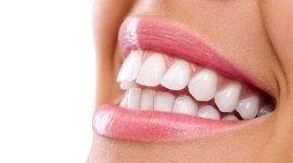 denti allineati