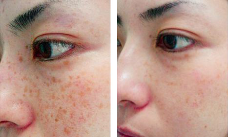 Facial laser treatment result
