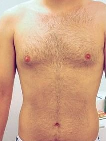 Hairy chest before treatment