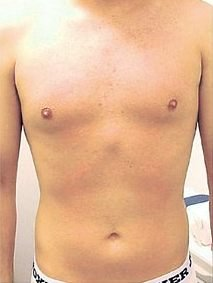 Hairless chest  after treatment
