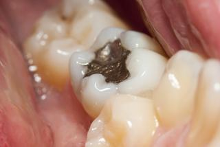 General Dentistry Ballantyne, NC