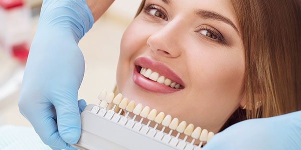 Teeth whitening concept in CA