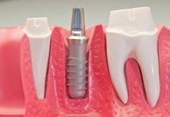terapia dentale