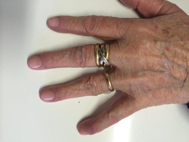 ricostruzione unghie acrilico