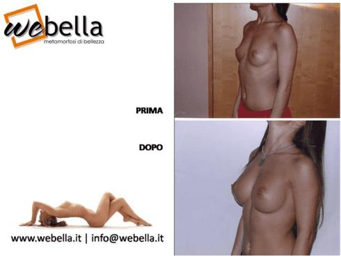 ingrandimento seno